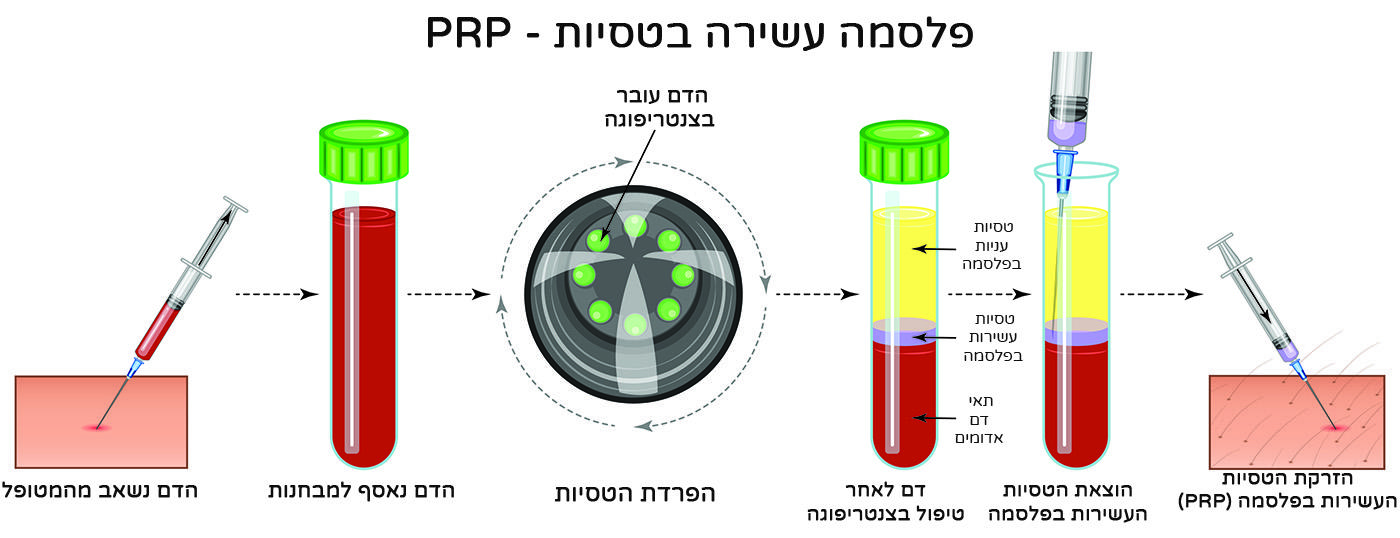 סכמת תהליך ביצוע PRP